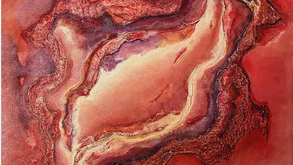 Fissure