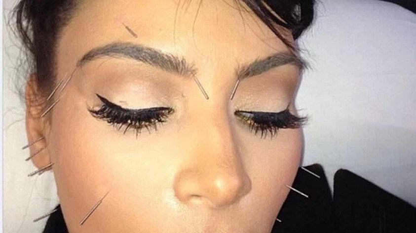 针灸面雕Acupuncture facial lifting