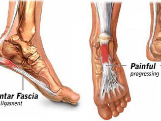แผ่นพังผืดใต้ฝ่าเท้าอักเสบหรือโรครองช้ำ (Plantar Fasciitis)