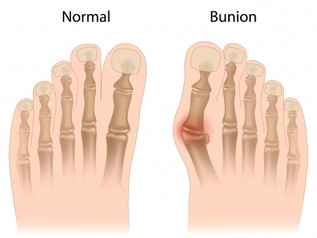 นิ้วโป้งเท้าเอียง BUNION (HALLUX VAGUS)