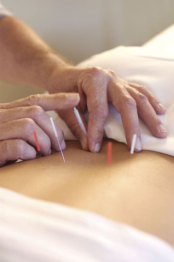 5 medical uses for acupuncture and why you should give it a try