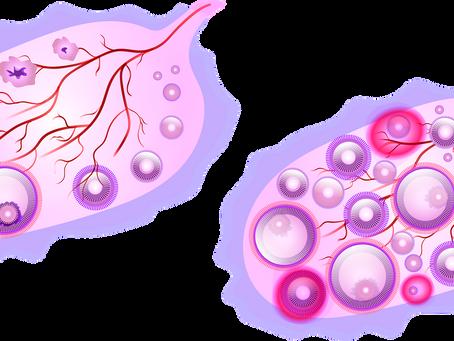 Síndrome de ovario poliquístico (I) ¿Existen alternativas a la píldora anticonceptiva?