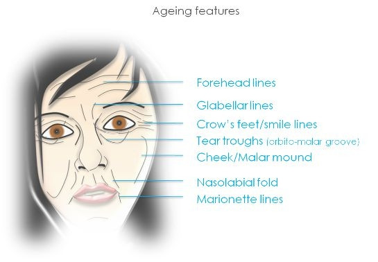 Areas that can be treated with botox and fillers.