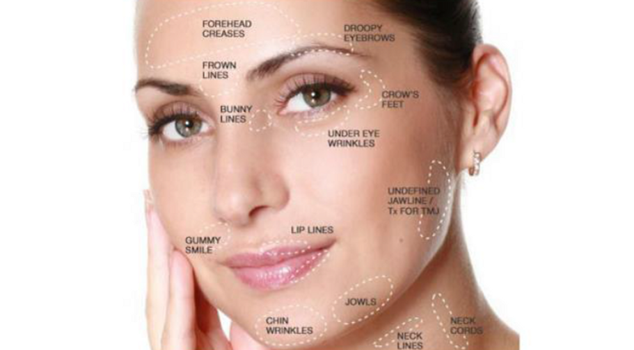 Botox areas.png