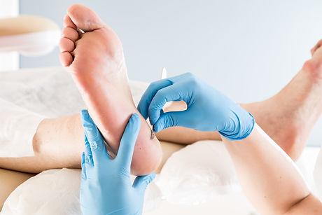 Podiatrist treating toenail fungus. Podo