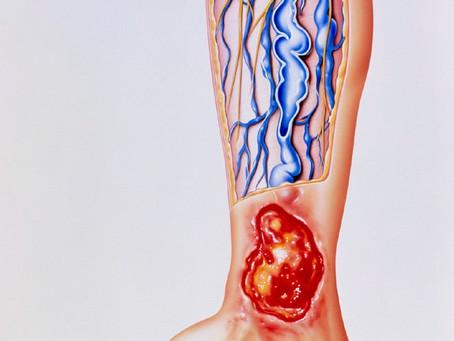 Úlcera varicosa: por que aparece e como se ver livre dela