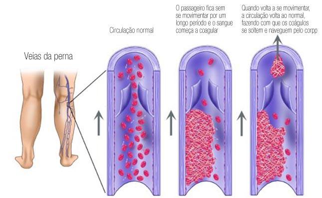A formação de coágulos nas veias pode levar a trombose e embolia