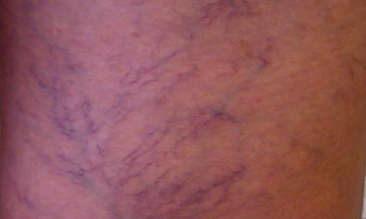 Telangiectasias ou vasinhos nas pernas