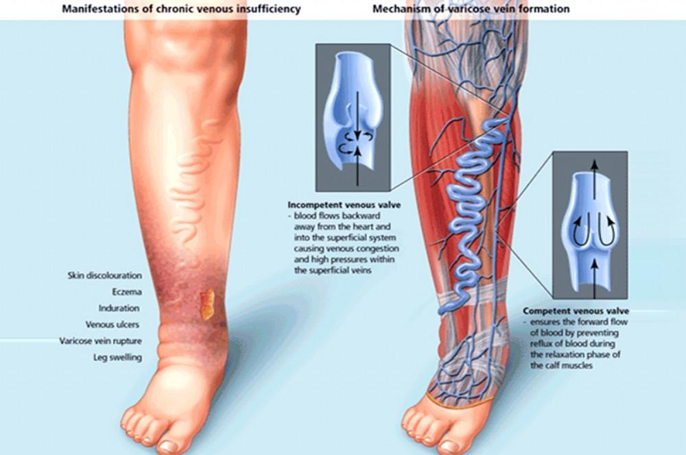 A síndrome pós trombótica leva ao aparecimento de inchaço, dores e varizes nas pernas, além de escurecimento da pele e aparecimento de úlceras