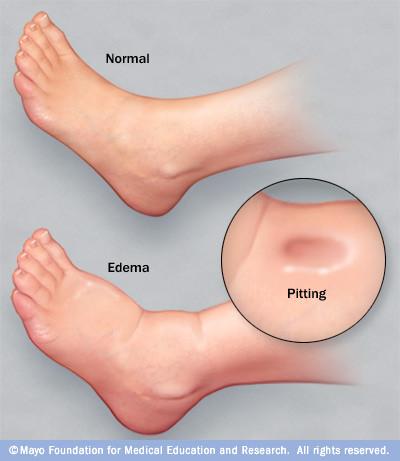 Os problemas da circulação linfática levam a inchaço ou edema das pernas