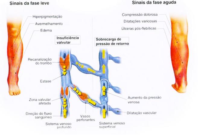 a trombose venosa profunda TVP é causa de aparecimento de varizes