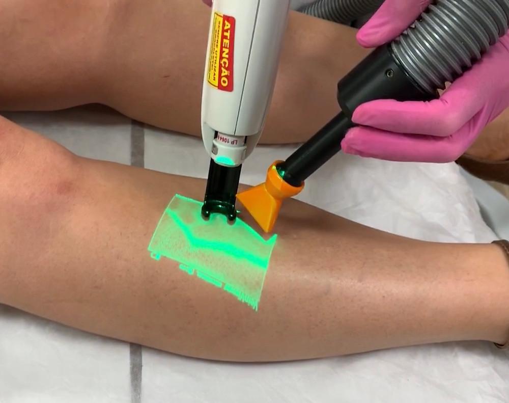 O laser transdérmico é um tratamento efetivo contra telangiectasias e vasinhos