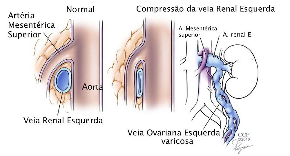 A compressão da veia renal pode ser cauda de varizes pélvicas e varizes na vagina