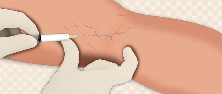 O tratamento de varizes com espuma pode ser feito em varizes menores e vasinhos