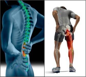 Dores nas pernas podem ser causadas pela compressão do nervo ciático na hérnia de disco