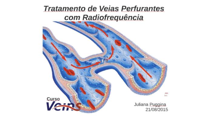 21/08/2015 - Curso Veins
