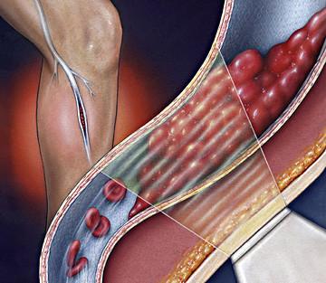 Trombose venosa profunda: entupimento das veias das pernas
