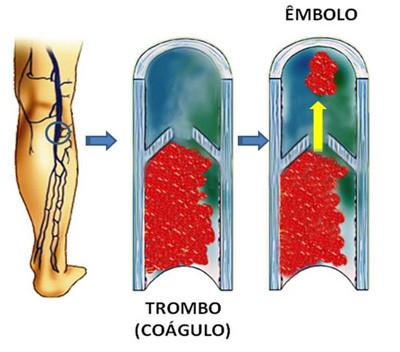 A embolia pulmonar ou TEP ocorre quando um fragmento do coágulo de uma trombose nas pernas se desprende e acaba entupindo a circulação do pulmão