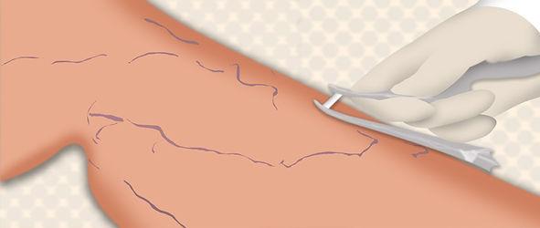 microcirurgia de varizes.jpg