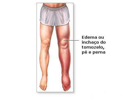 A trombose venosa causa inchaço e dor na perna repentinos