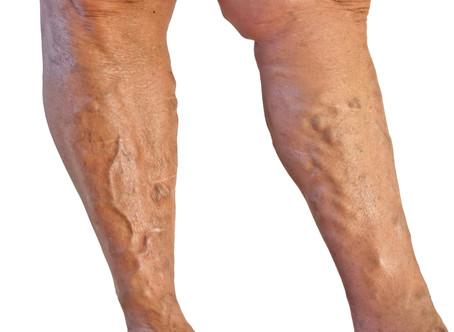 Como tratar varizes nas pernas?