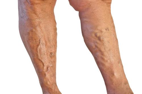 As varizes podem ser tratadas com ou sem cirurgia