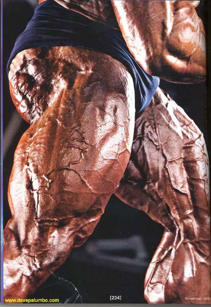 Pessoas musculosas geralmente têm veias superficiais evidentes, mas essas veias são normais, não são varizes