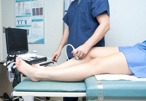 O ultrassom doppler é essencial para o planejamento do tratamento das varizes