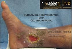 11/05/2020 - Prosa Vascular SBACV MG