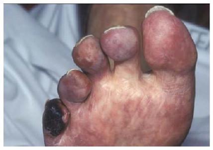 A gangrena ocorre pela obstrução das artérias