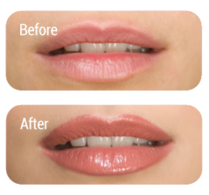 uneven-lip-correct-makeup-lipliner-color-makeup-helpful-tips-Norwich-Norfolk.png