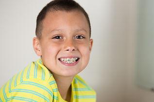 Mount Lebanon Orthodontist, Braces, South Hills Pittsburgh, Invisalign, Invisalign Teen