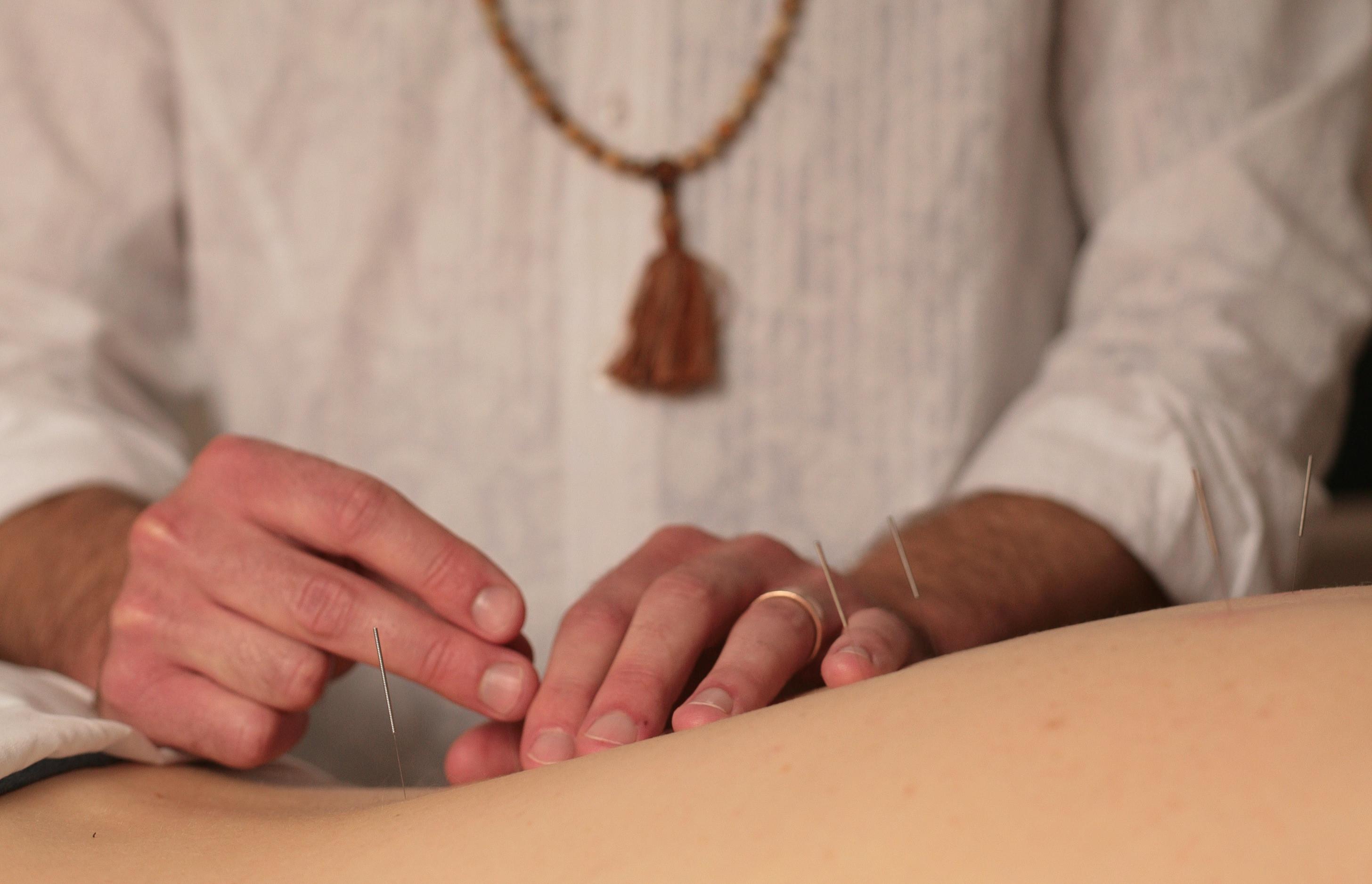 New Patient - Acupuncture