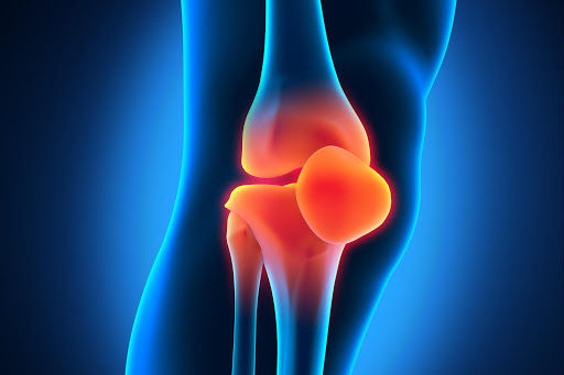 КТ колінного суглоба без контрасту