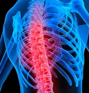 КТ грудного відділу хребта
