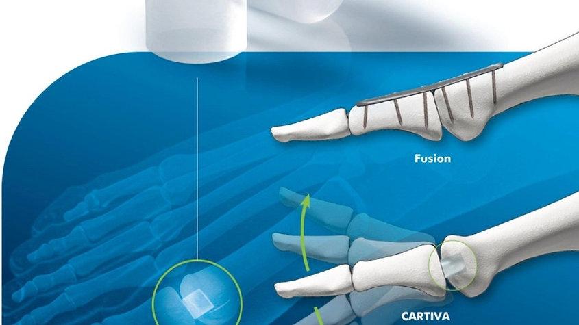 Cartiva implantat bevegelse.jpg