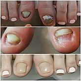 #fußpflege #fußpflegelinz #nagelrekonstruktion #fusspflege b pedicure bad hall #fußpflege Linz diabetische Fußpflege