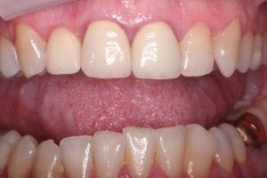 DVDental-Website-implantsafter.jpg