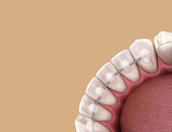 Fixed Retainers Batemans Bay Orthodontics - Orthodonist Batemans Bay