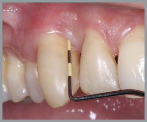 Periodontal Disease | Modern Dentistry | Canberra Dentist