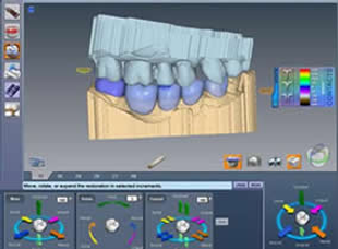 Dental Impressions | Modern Dentistry | Canberra CBD Dentist