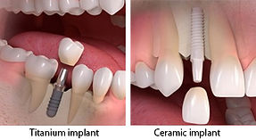 straumann-titanium-ceramic-implants.jpg