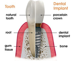 Dental Implant vs Tooth | Modern Dentistry | Canberra Dentist