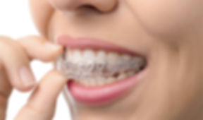 Clear Aligners at Channon Lawrence Denta