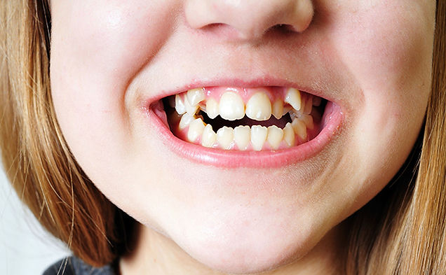 girl-orthodontic-issues1.jpg