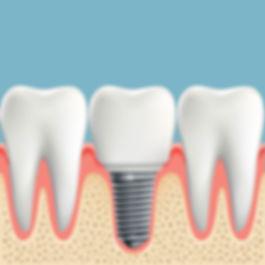 Nova-Dental-dental-implants-3.jpg
