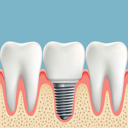 Nova-Dental-dental-implants-3.jpg