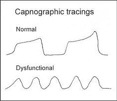 capnographic-tracings2-320x276.jpg