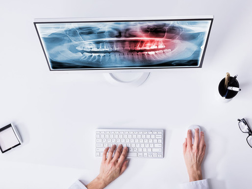 Dental X-Rays - What, Why & How?