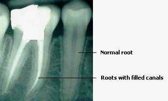 Root Canal XRay | Modern Dentistry | Canberra CBD Dentist